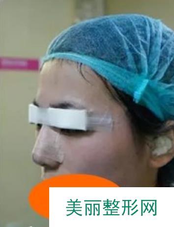 华侨医院双眼皮成就了我布林布林的萌萌大眼