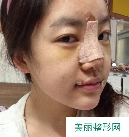 成都米亚整形医院隆鼻案例,蜕变将从这里开始……