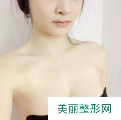 伊美尔何祯平医生自体脂肪隆胸案例,迷人曲线性感身材!