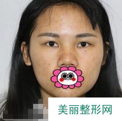 记录:江艳隆鼻真人案例反馈,这位美眉的美貌进化史!