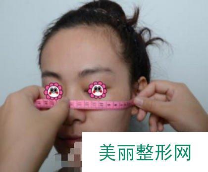 颧骨颧弓整形改小脸型,精雕细琢你的脸庞轮廓!