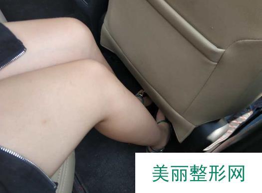案例:沈阳杏林脱毛真人秀,告别毛发随意露出的尴尬!
