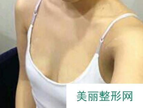 合肥艺星整形医院做完隆胸穿上新买的比基尼秀一圈性感身材