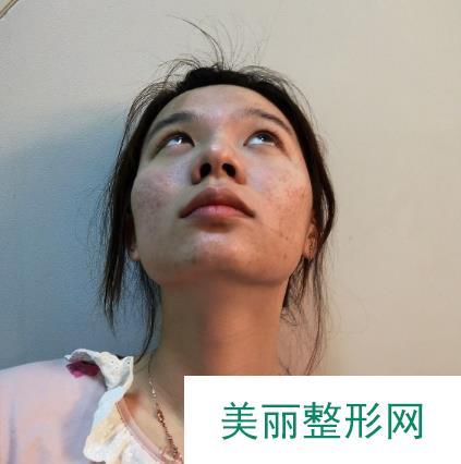 沈阳医大一院激光祛痘印案例图,瞬间无痕也太神奇了吧!