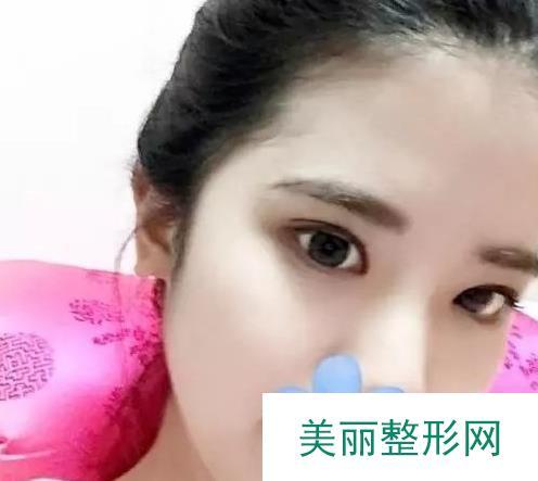 加美整形医院做的双眼皮解锁出厂自带般自然美眸