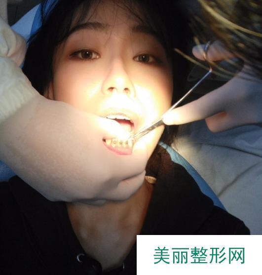 侯振杰外科正牙靠谱吗?看我的亲身经历分享就造辣!