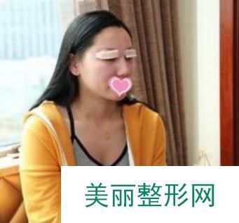 刘志强给我做的双眼皮,整理成案例来分享给大家!