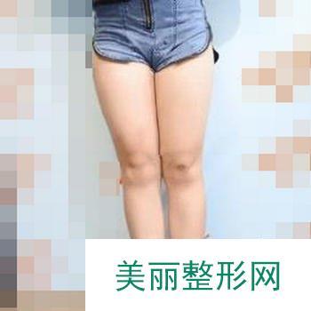 南京米亚整形医院好不好?做完大腿吸脂来反馈一下!