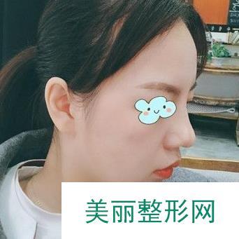 西昌整形专家汤颖峰隆鼻案例,要做街上超靓的仔!