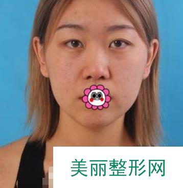 西宁隆鼻案例真人分享,来看看这以假乱真的效果!