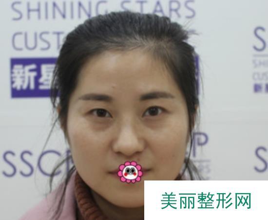 天津464医院双眼皮术后气质真的变好了很多