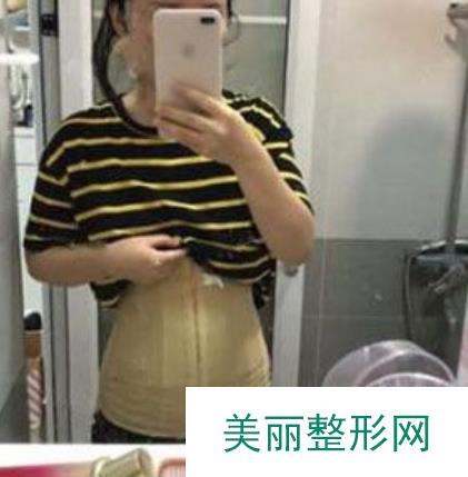 杭州新友好整形医院做完吸脂拥有小蛮腰驾驭比基尼