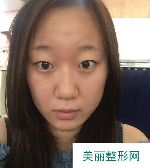 """爱思特张姣姣医生双眼皮案例,不愧是眼整形""""花旦""""!"""