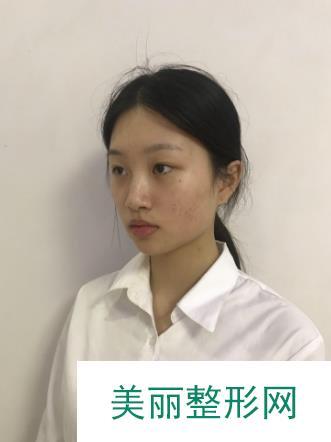 西宁华美整形美容医院做了祛斑后面部白皙容光焕发