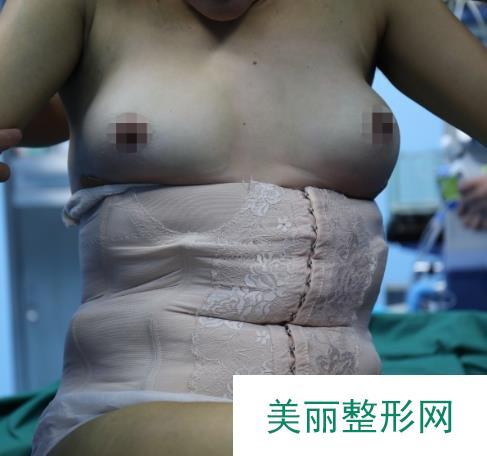 嘉兴华山整形医院做的自体脂肪隆胸型好看没有不适