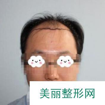 上海瑞阳做植发真的不亏,大叔秒变年轻小鲜肉