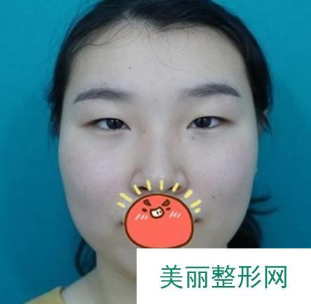 上海百达丽徐晓斐双眼皮案例,自然毫不夸张的风格!