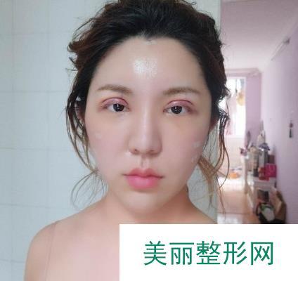 眼角疤痕增生图,后期修复看不出增生痕迹