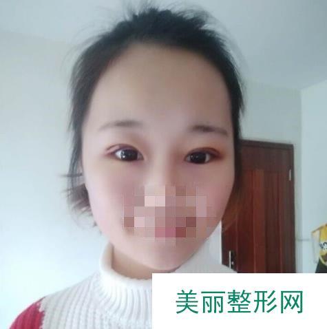 青医附院做完双眼皮一个多月恢复记录【图】