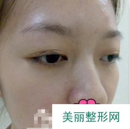 在沈阳杏林做的双眼皮,我们家终于有双眼皮的了!