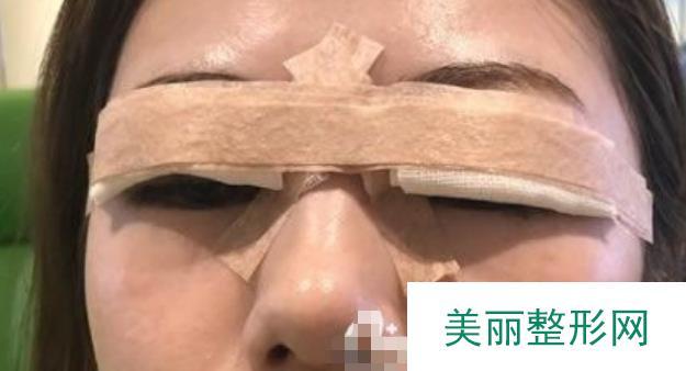 我在伊美尔医疗美容做的埋线双眼皮,你们看看效果