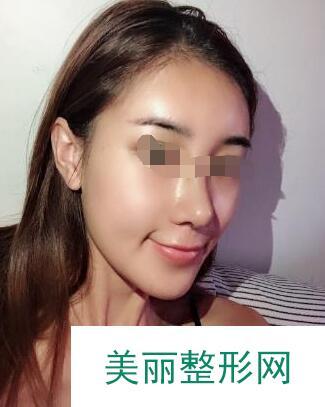 在秦皇岛纪辉纹眉后,每天化妆的时间大大缩短了
