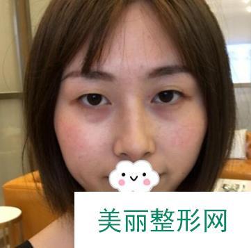 武汉美亚整形双眼皮后的变化实在太大了