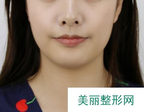 地包天矫正前后图片,对矫正脸型很有用
