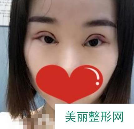 整容手术前后照片对比_眼部篇