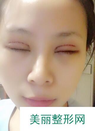 北京明会红做了双眼皮