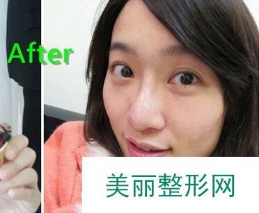 北京韩式注射隆鼻居然一点也不疼,效果让我喜出望外!
