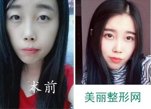 哈市211医院美容科割双眼皮【案例】,不要怀疑这就是同一个人!