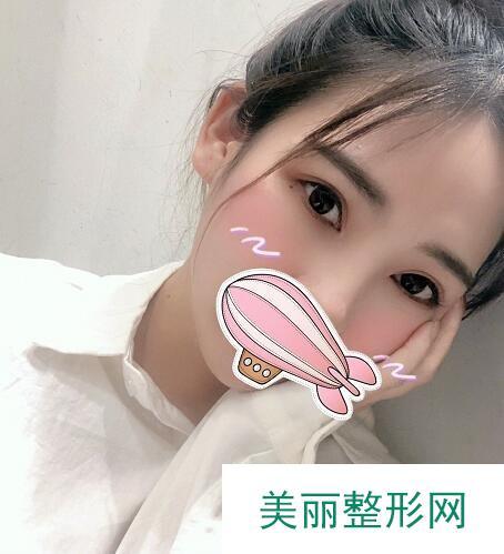 贵阳小李飞刀吴光宇双眼皮【案例】,度过尴尬期后美开了花!