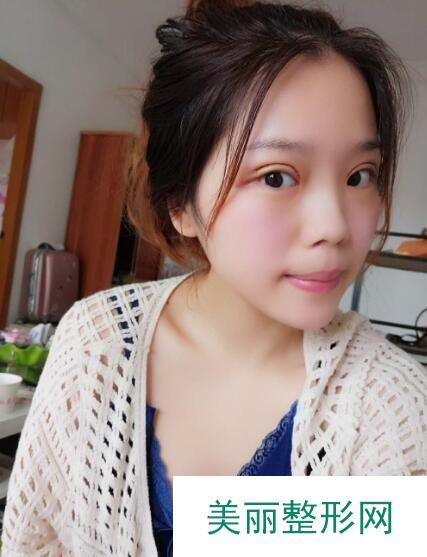 上海时光许黎平双眼皮做的怎么样?这个案例让小姐姐颜值翻倍!