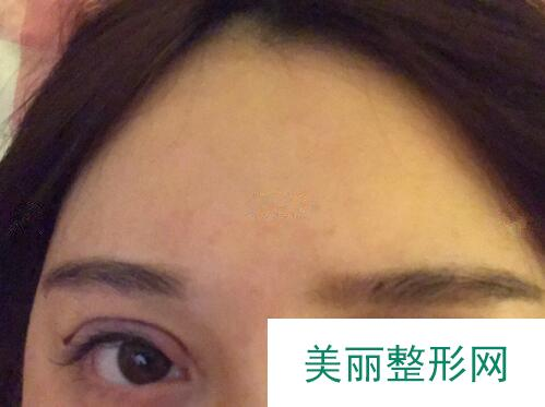 """淄博一美天成价目表新动态,双眼皮案例让她找到""""第二春""""!"""