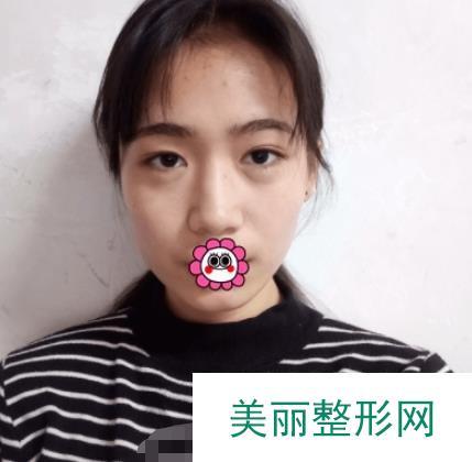 刘德成整形医生祛眼袋案例真人效果图,精气神一下就上来了!