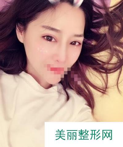 上海美仑整形胡晓龙隆鼻案例,【图】好像是大师的杰作!