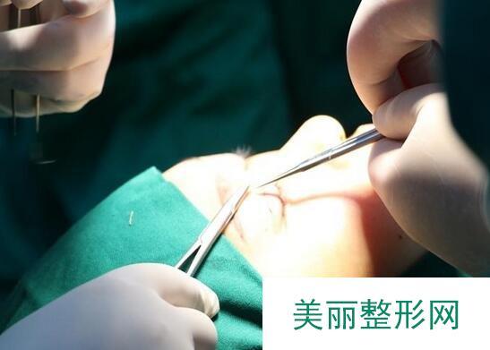 张冰洁医生外眼角修复真人案例,整形还是行家医生靠谱!