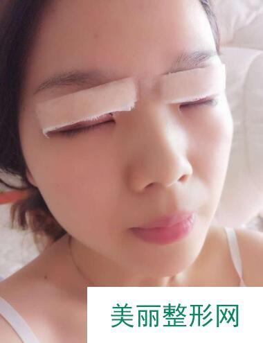 青医附院匡瑞霞双眼皮案例,变美的背后是精湛技术的支撑!