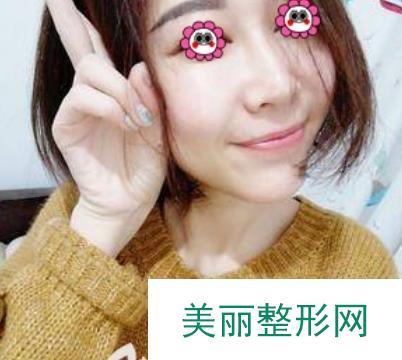 台湾医生邓智仁给我做了玻尿酸隆鼻,一点也没有突兀的感觉!