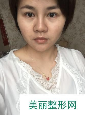 蒋正华医生激光祛痘治疗案例,轻松解决痘女士多年的困扰!