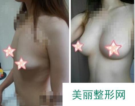 假体隆胸记录:点赞李昌医生的技术,胸型很漂亮自然!