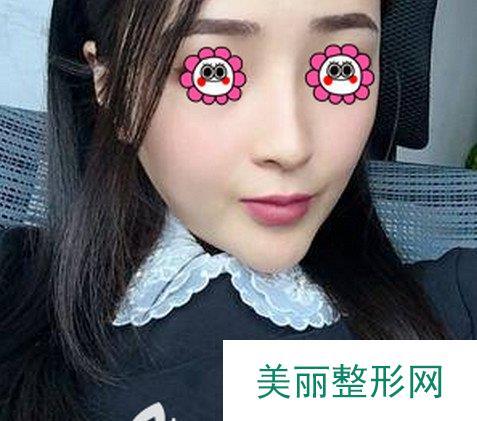 广州武警整形医院假体隆鼻案例,医生的审美让人佩服!
