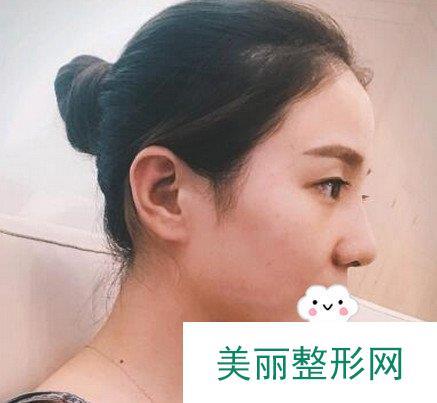 刘玉刚医生隆鼻案例:和我气质非常搭的鼻型【效果图】