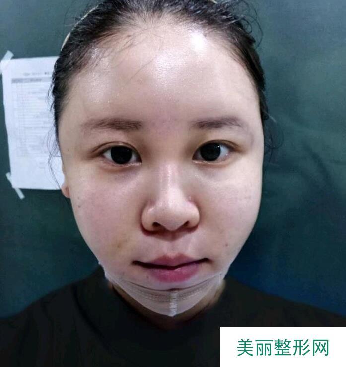 美禅吴一下颌角截骨案例,术后恢复四个月来汇报情况!