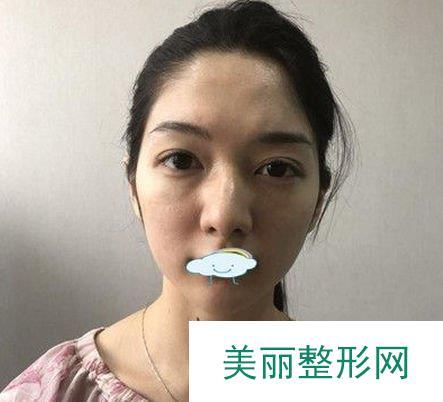 小仙女分享郑岩医生自体脂肪面部填充,很值得一看!