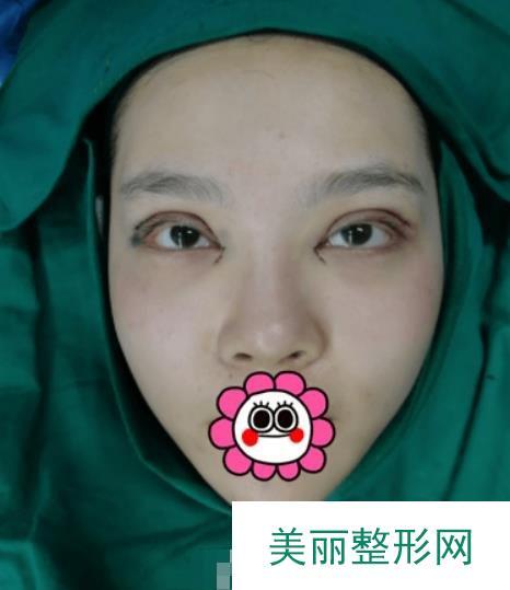 苏州100整形医院双眼皮日志,两个月拥有超自然的效果~