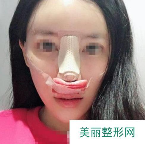巫文云鼻子案例(隆鼻修复)揭露他的技术,挑战高难度修复!