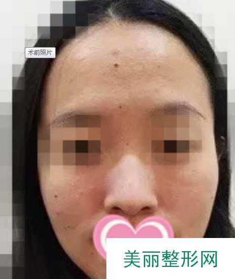 刘麟光子嫩肤体验过程心得分享,美肤治疗温和不刺激!