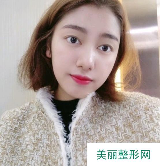 记录:倪彬医生双眼皮案例,术后一个月效果笔记分享!